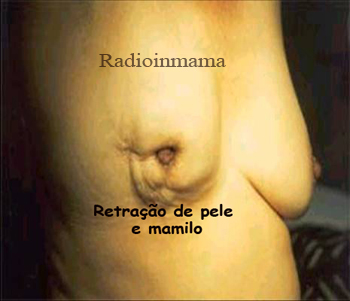 retracaopelemamilo